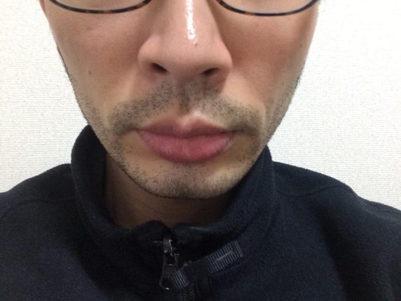 ひげ脱毛3回目の効果