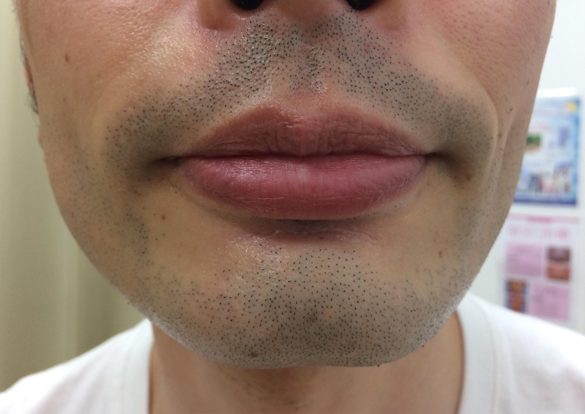 ひげ脱毛6回目の施術を受けた後の男性の顔