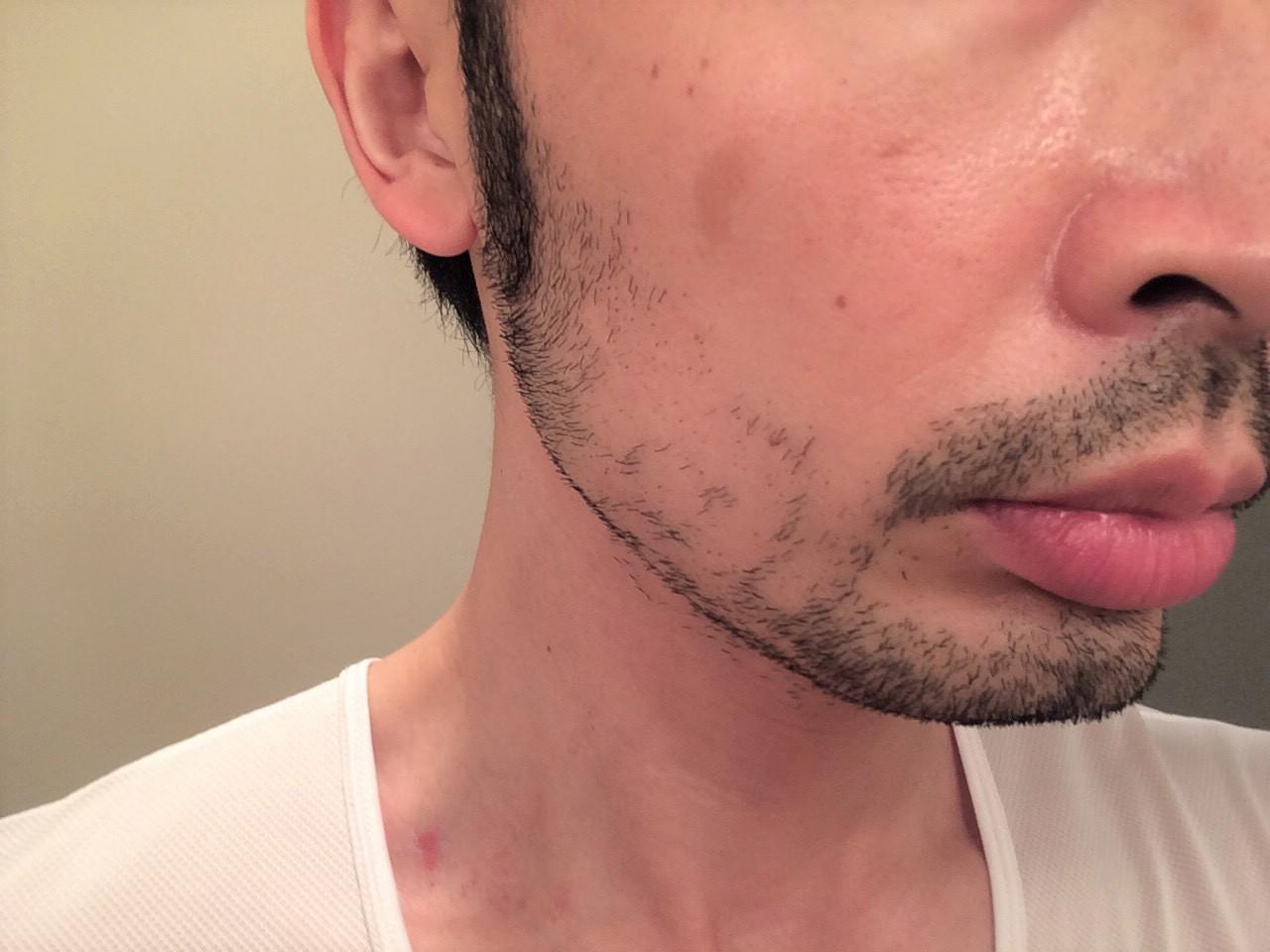 頬ひげ脱毛1回目の施術後