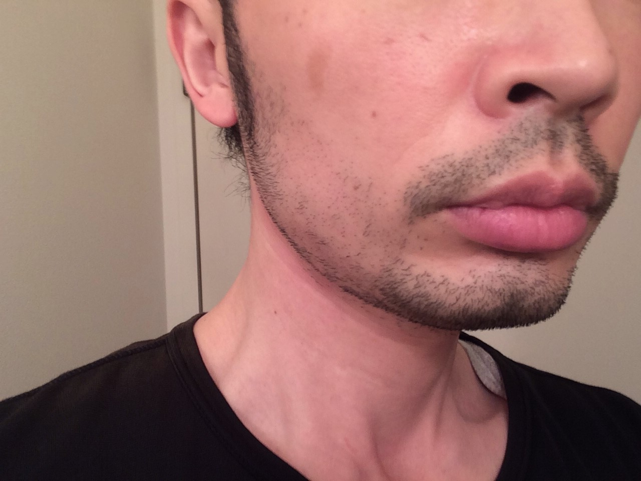 頬ひげ脱毛1回目の効果