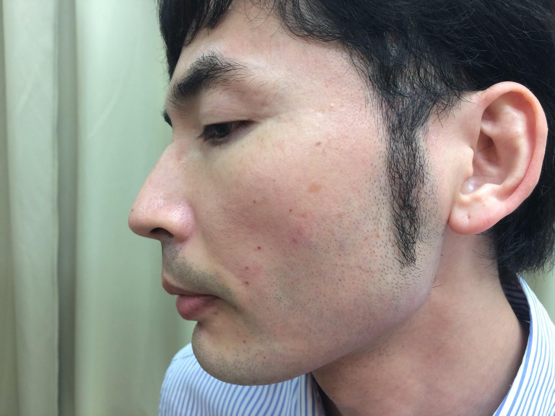 頬ひげ脱毛の施術直後の写真