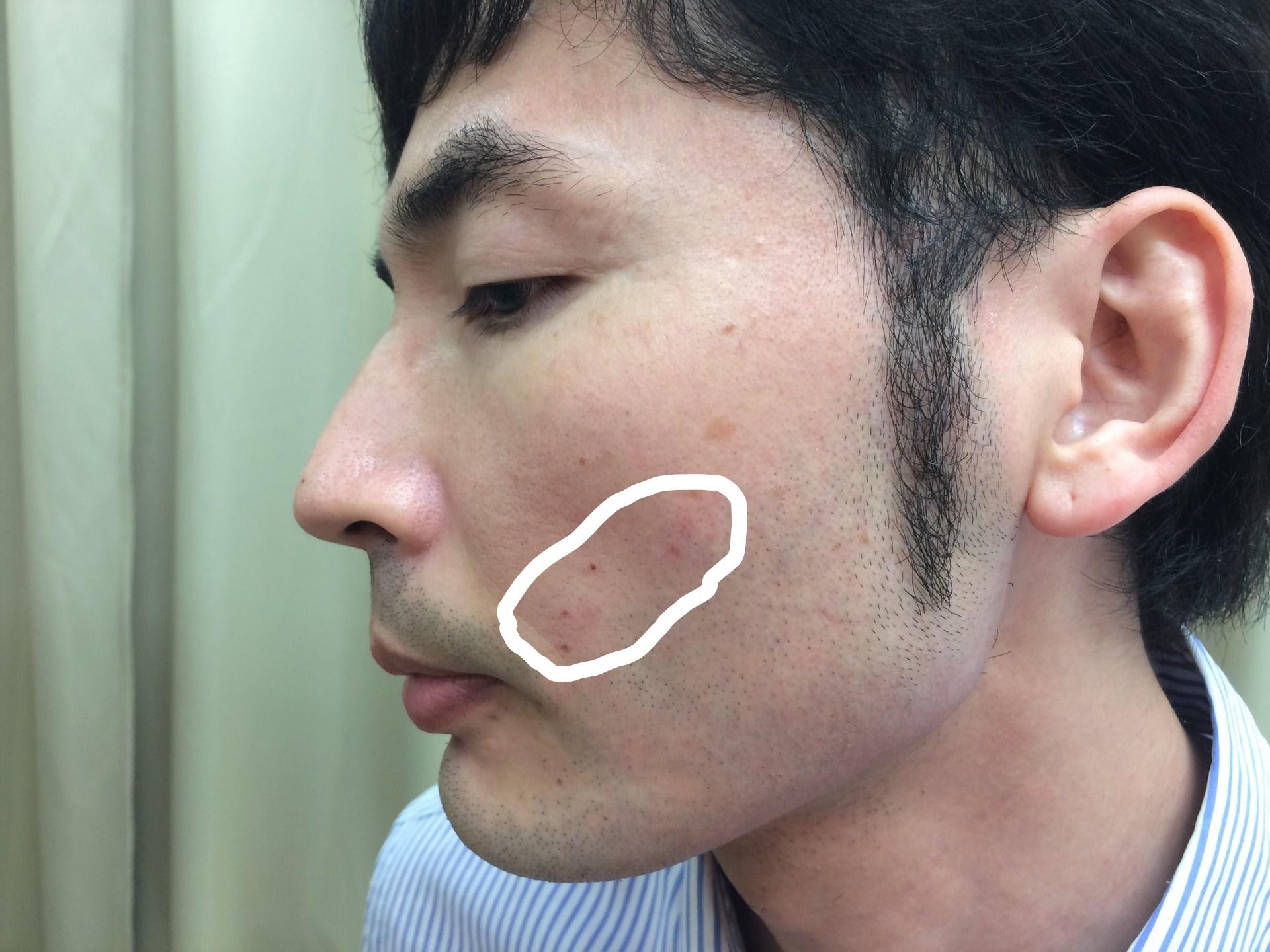頬ひげ脱毛の施術直後