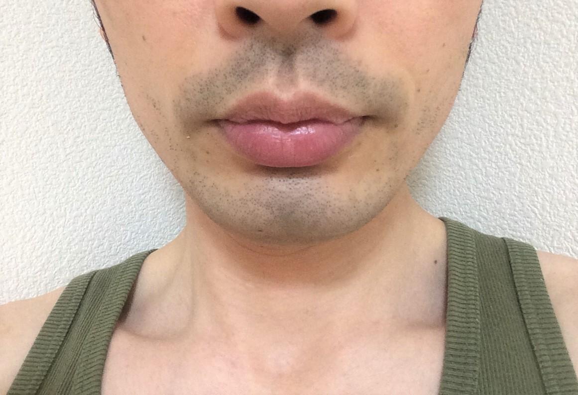 ひげ脱毛7回目の施術から1日後