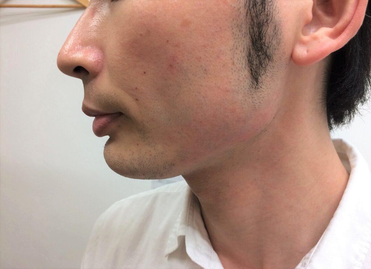 頬ひげ脱毛2回目の施術後