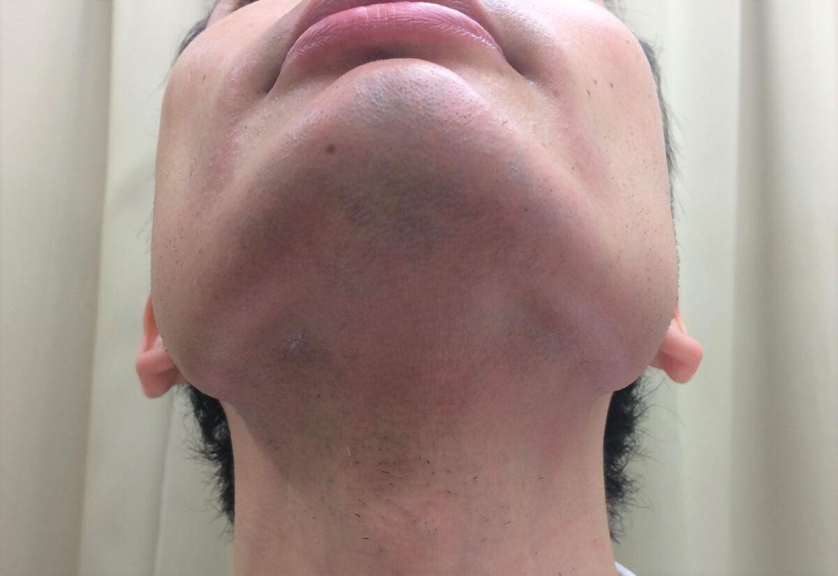 ひげ脱毛8回目の施術後・あご下