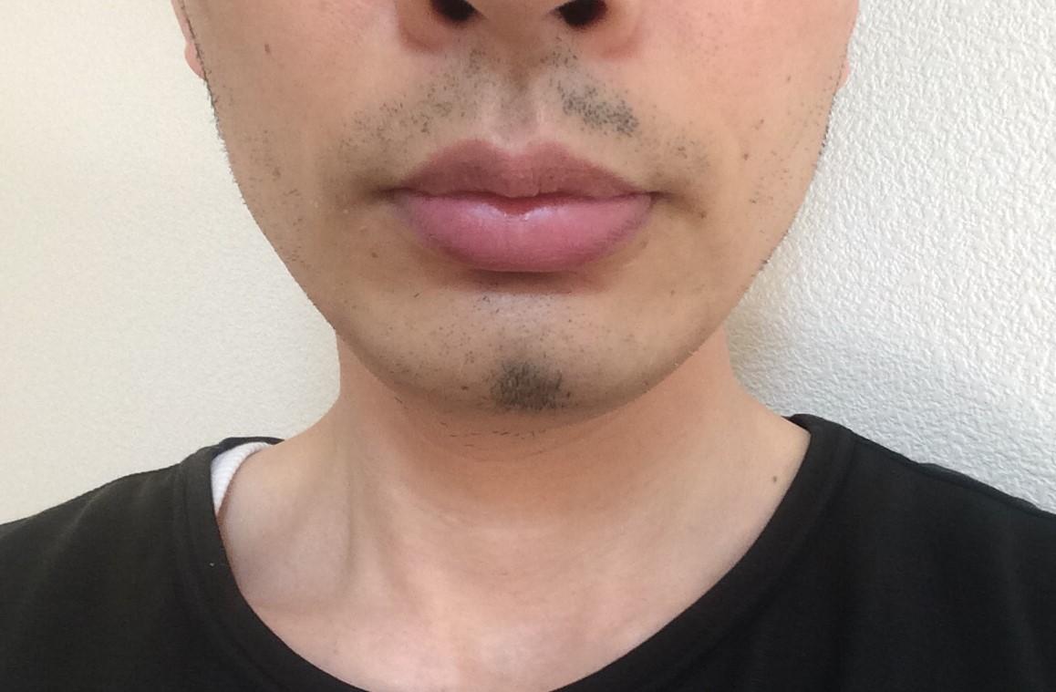 ひげ脱毛9回目の効果