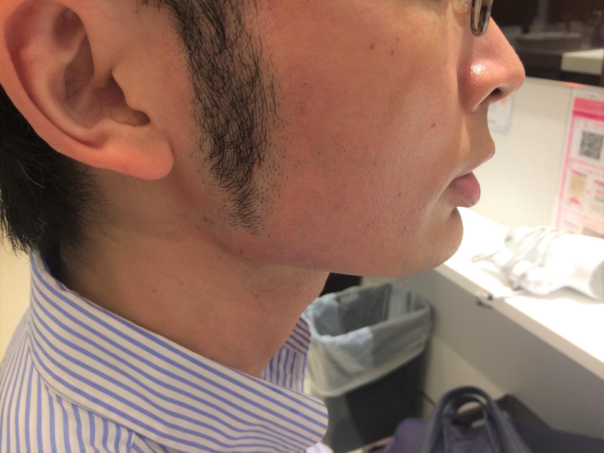 頬ひげ脱毛3回目の施術後