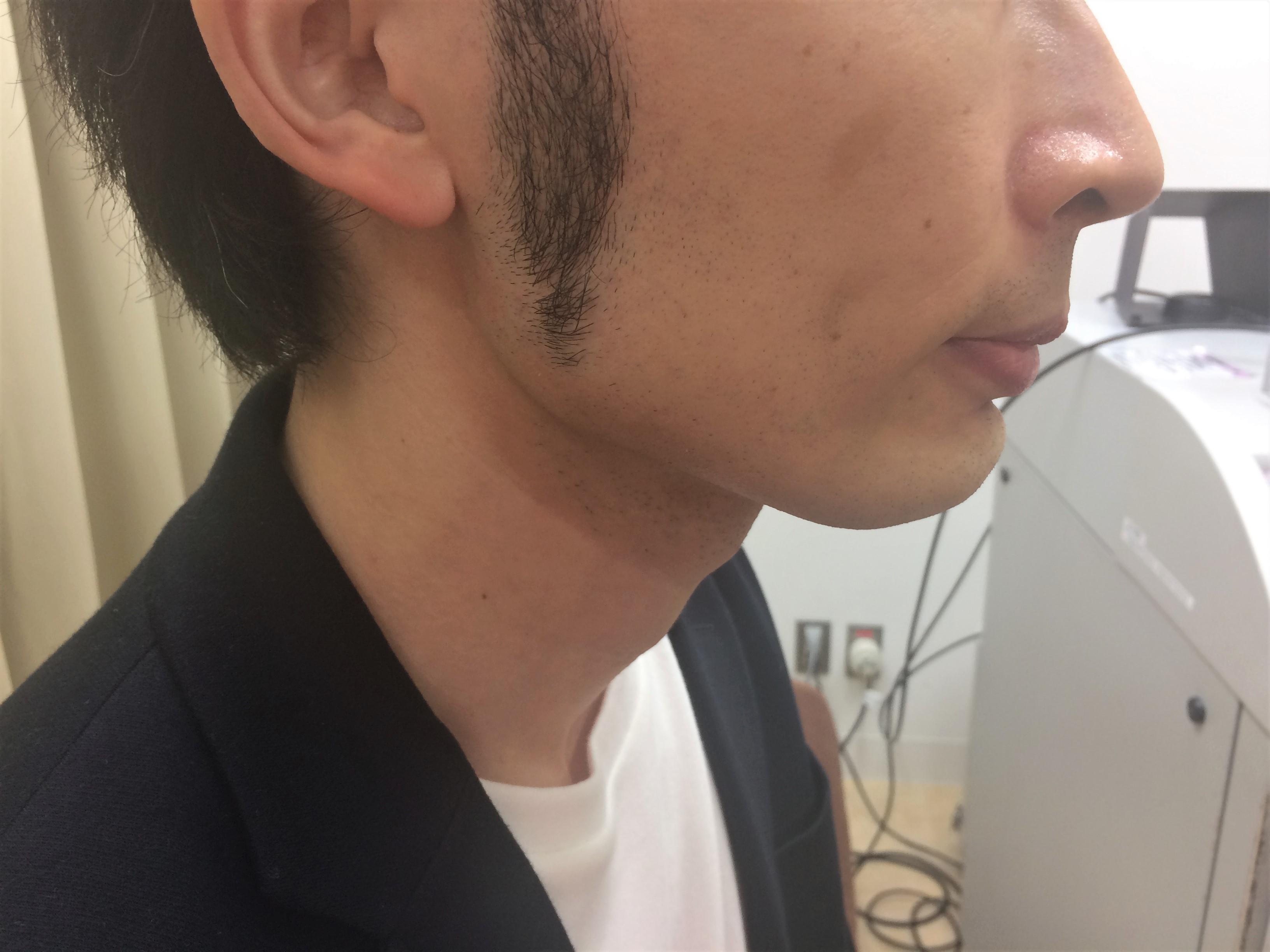 頬ひげ脱毛4回目の施術前