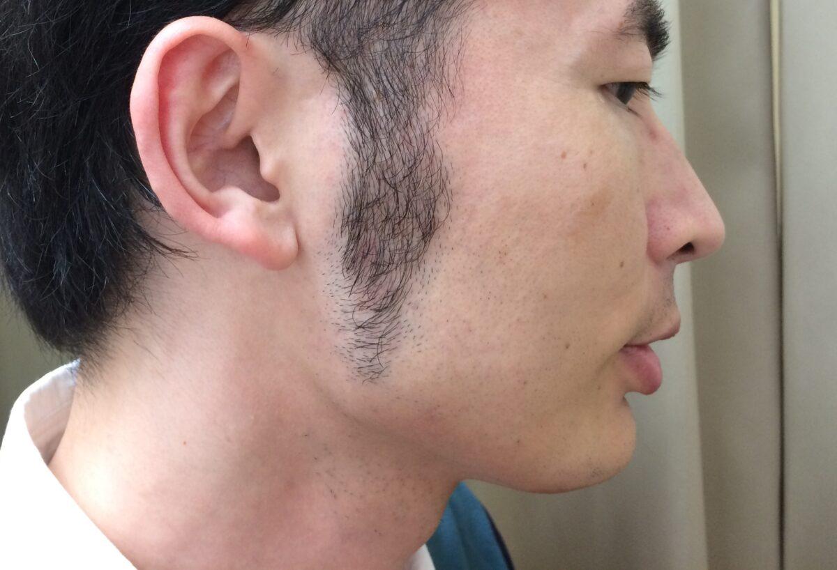 頬ひげ脱毛5回目の施術前