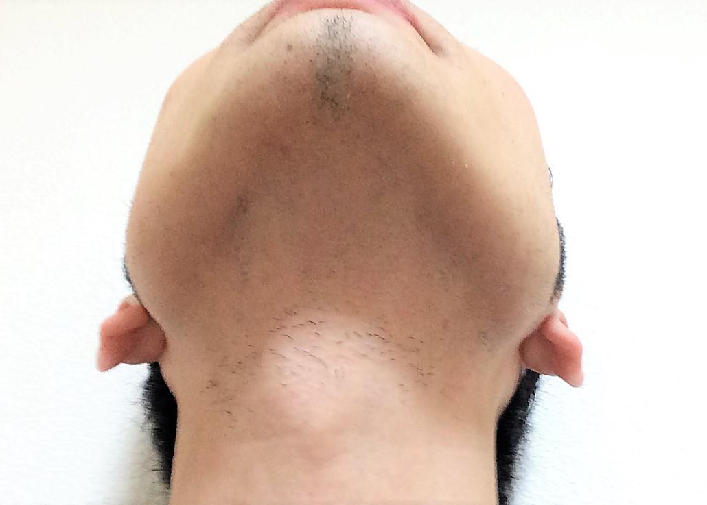 ヒゲ脱毛10回目の効果