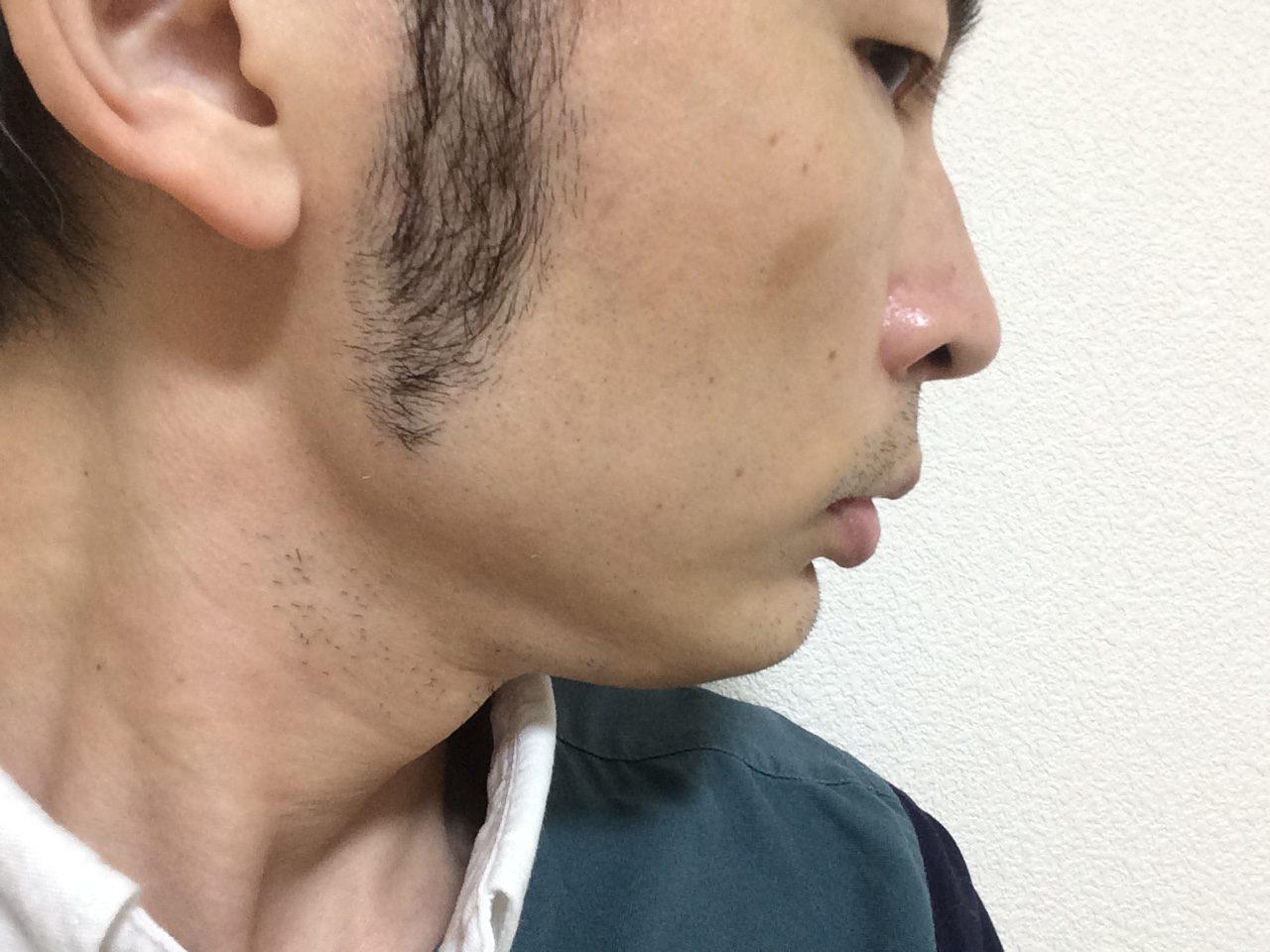 頬ひげ脱毛5回目の効果