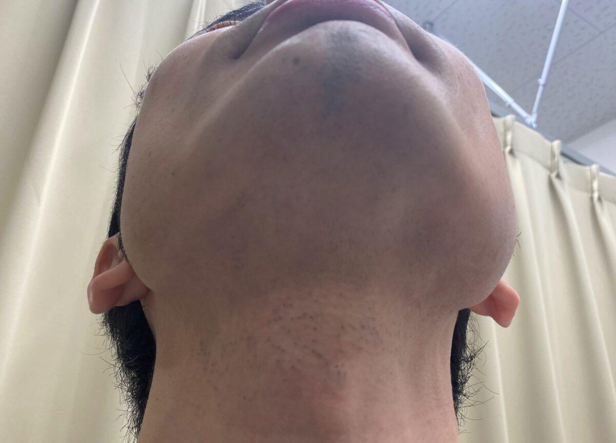 ひげ脱毛11回目施術前