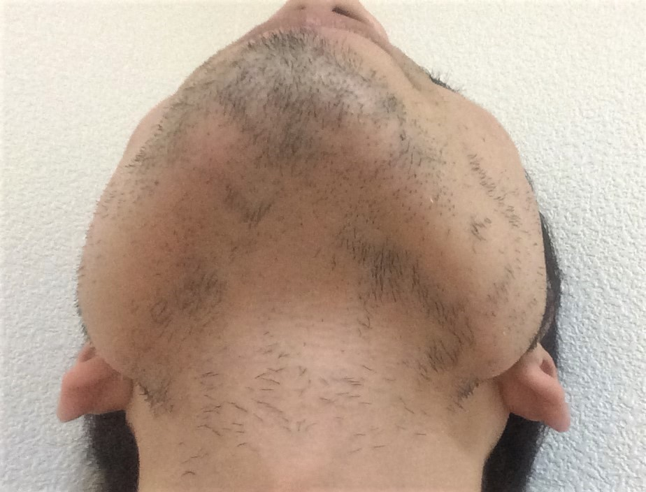 ひげ脱毛7回目の効果