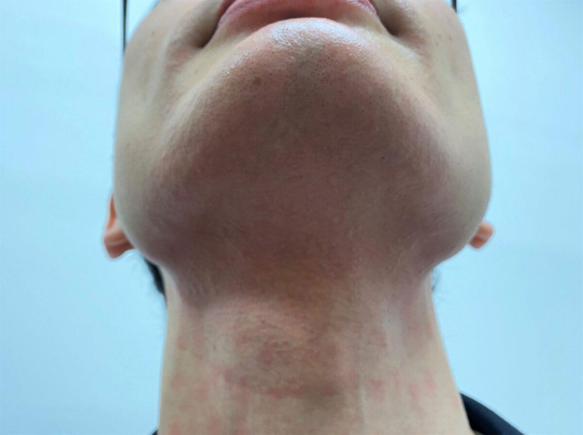 首ヒゲ脱毛の施術後