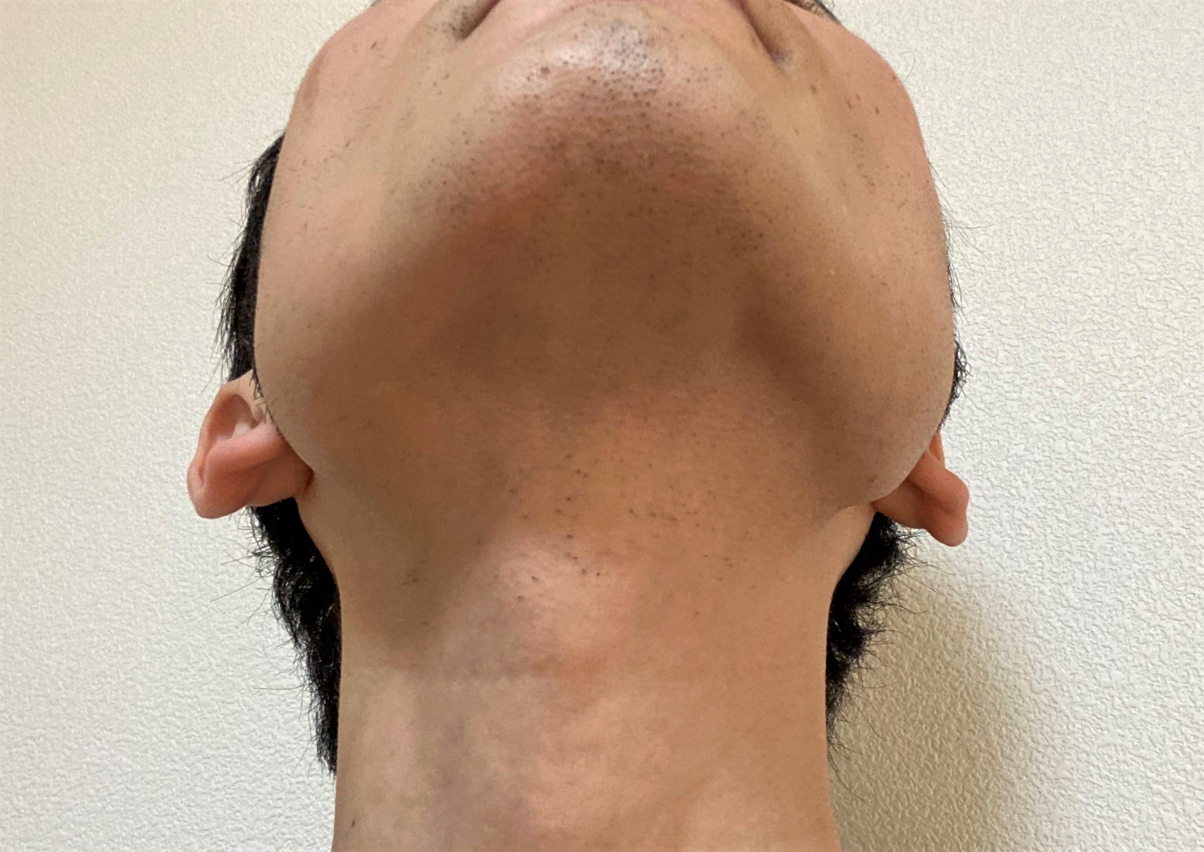 首ヒゲ脱毛の効果