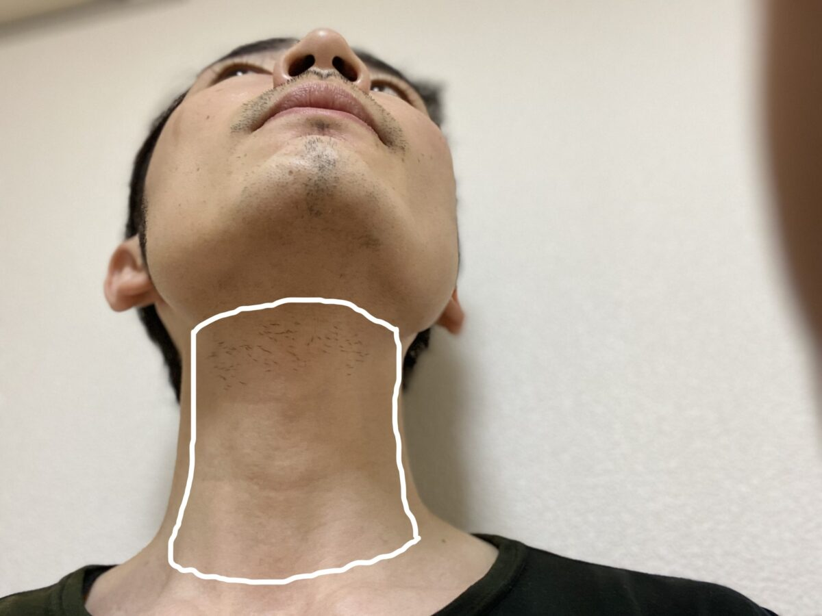 首ヒゲ脱毛の照射範囲