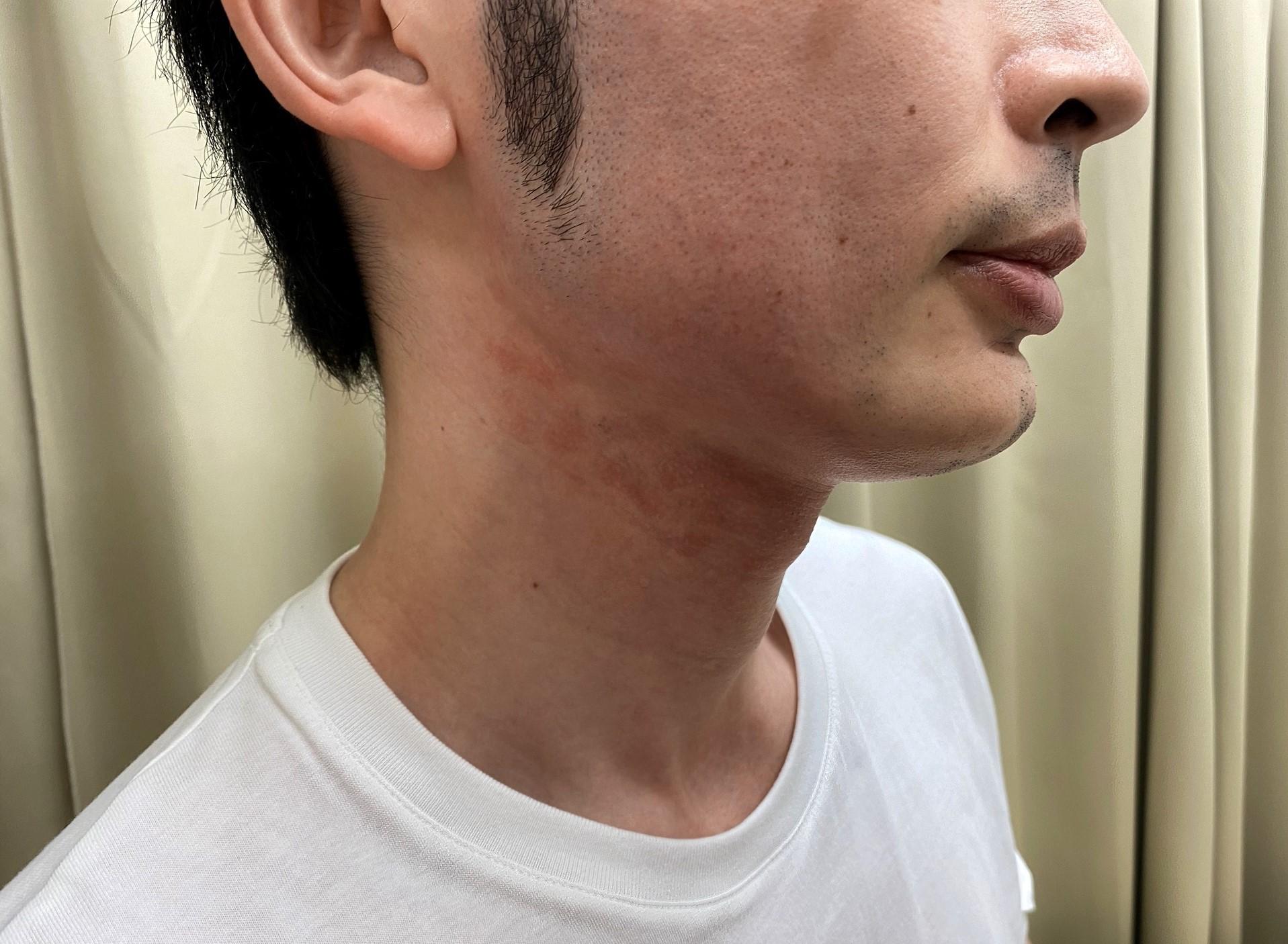 頬ヒゲ脱毛7回目施術後右