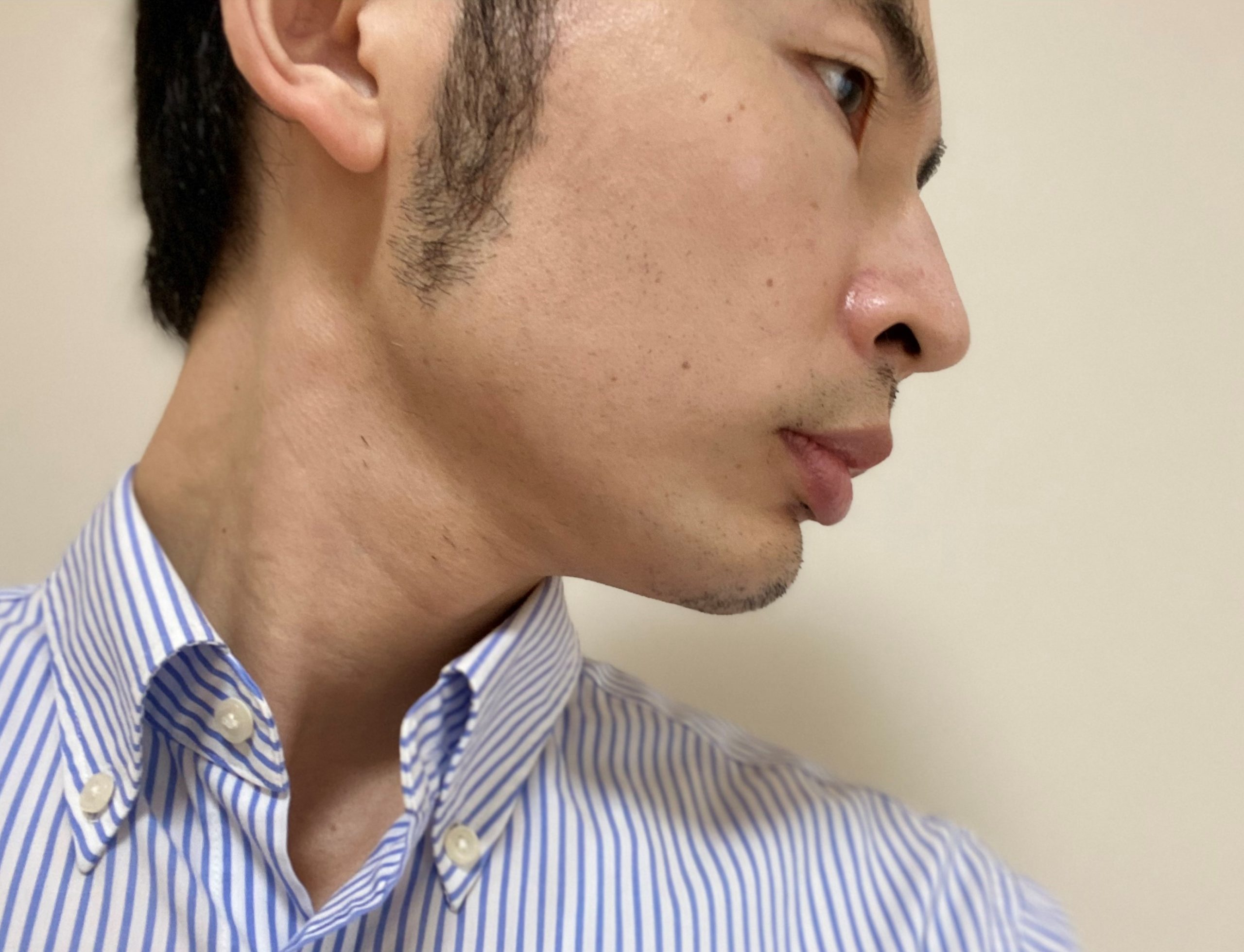 頬ヒゲ脱毛7回目2カ月後右