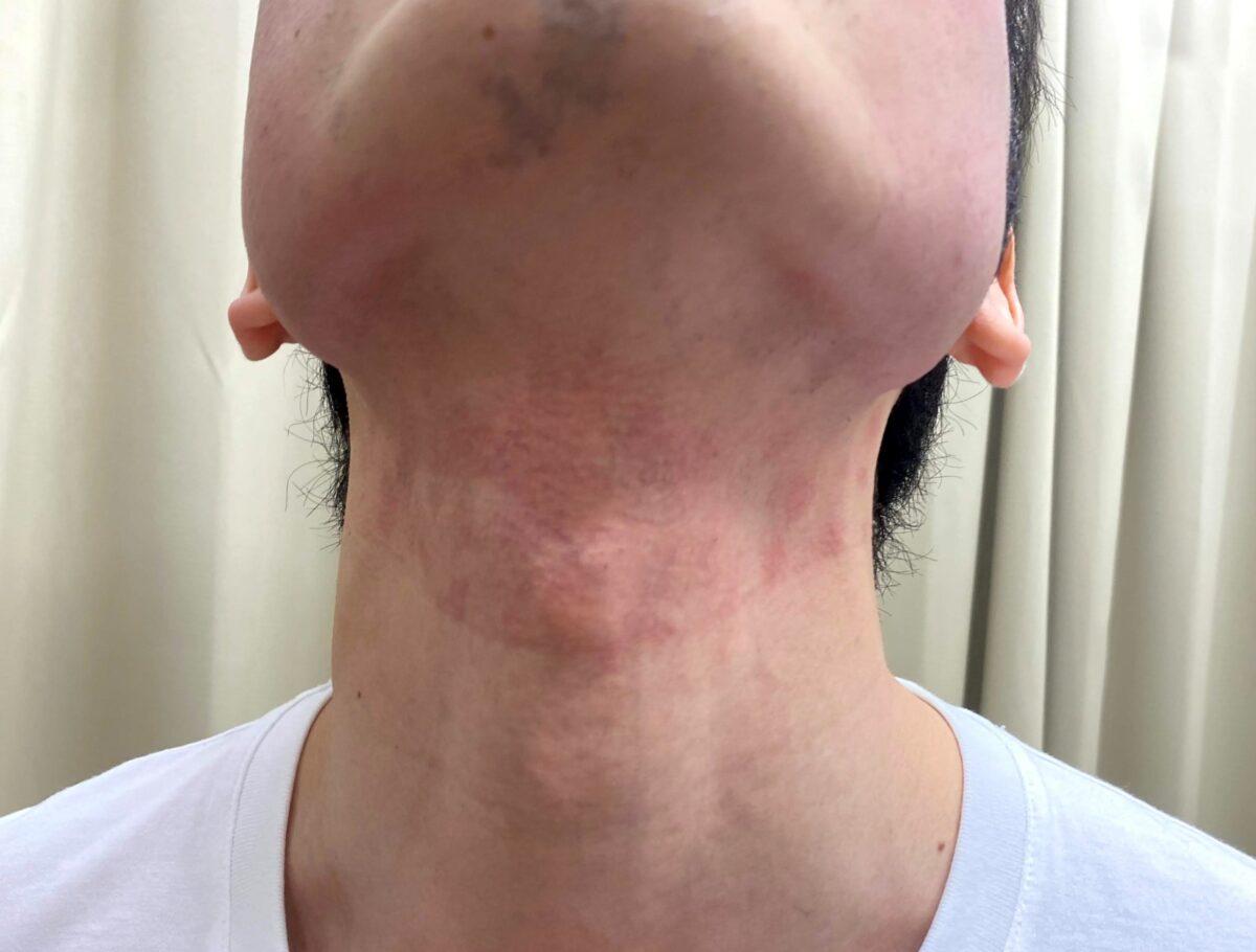 首ヒゲ脱毛2回目施術後