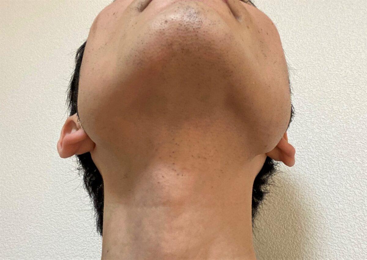首ヒゲ脱毛1回目の効果
