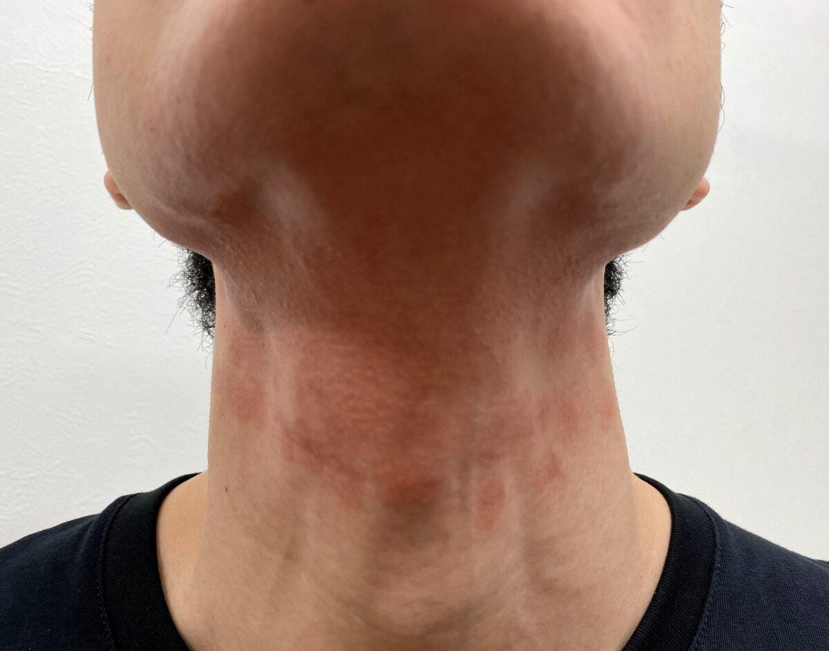 首ヒゲ脱毛3回目の施術後