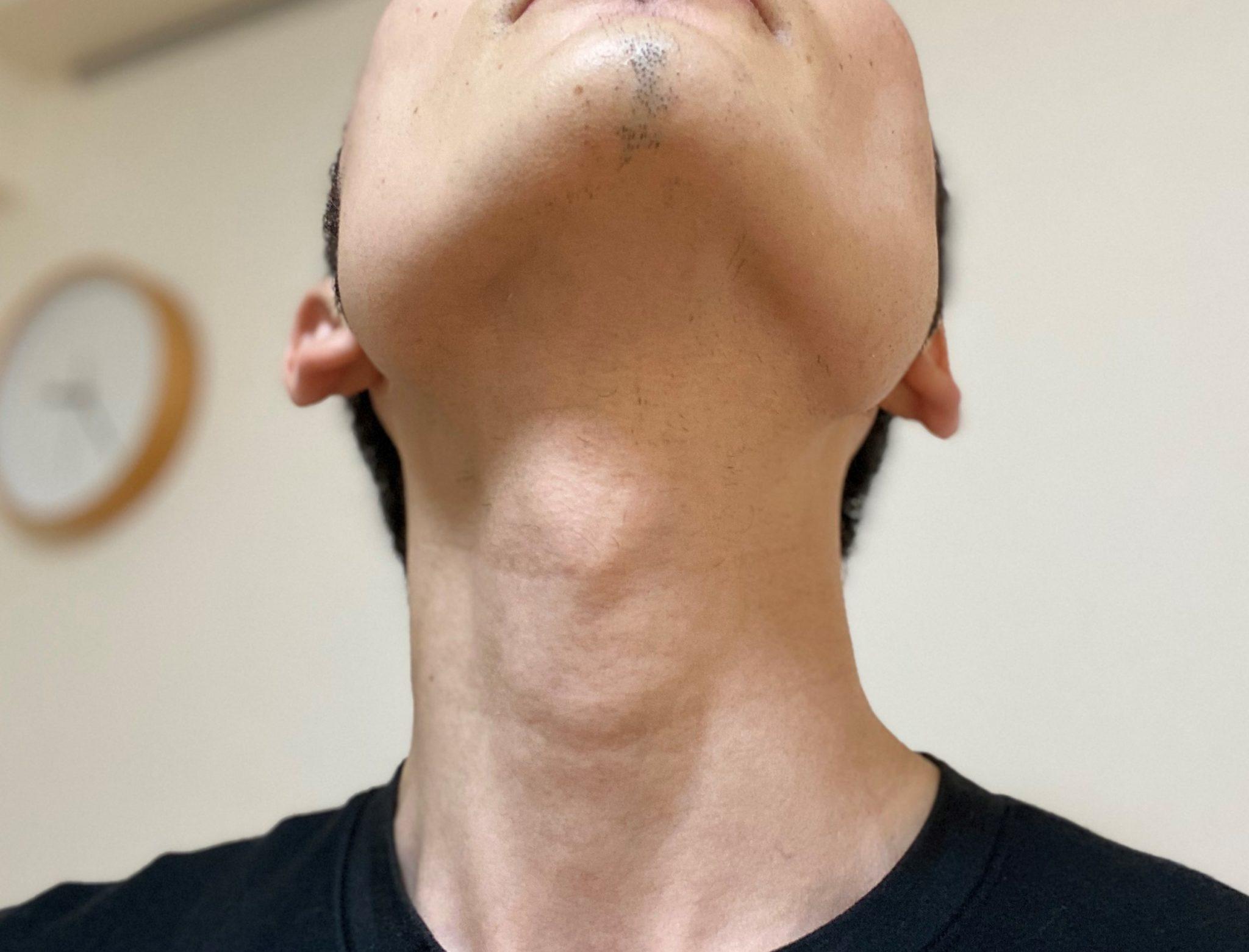 首ヒゲ脱毛3回目から2カ月後