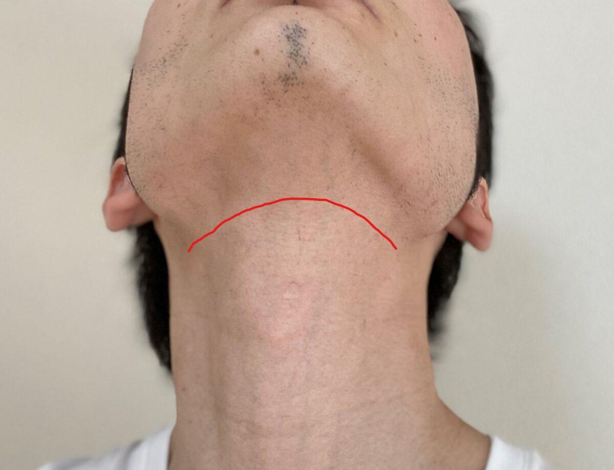 首ヒゲ脱毛3回目から1カ月後