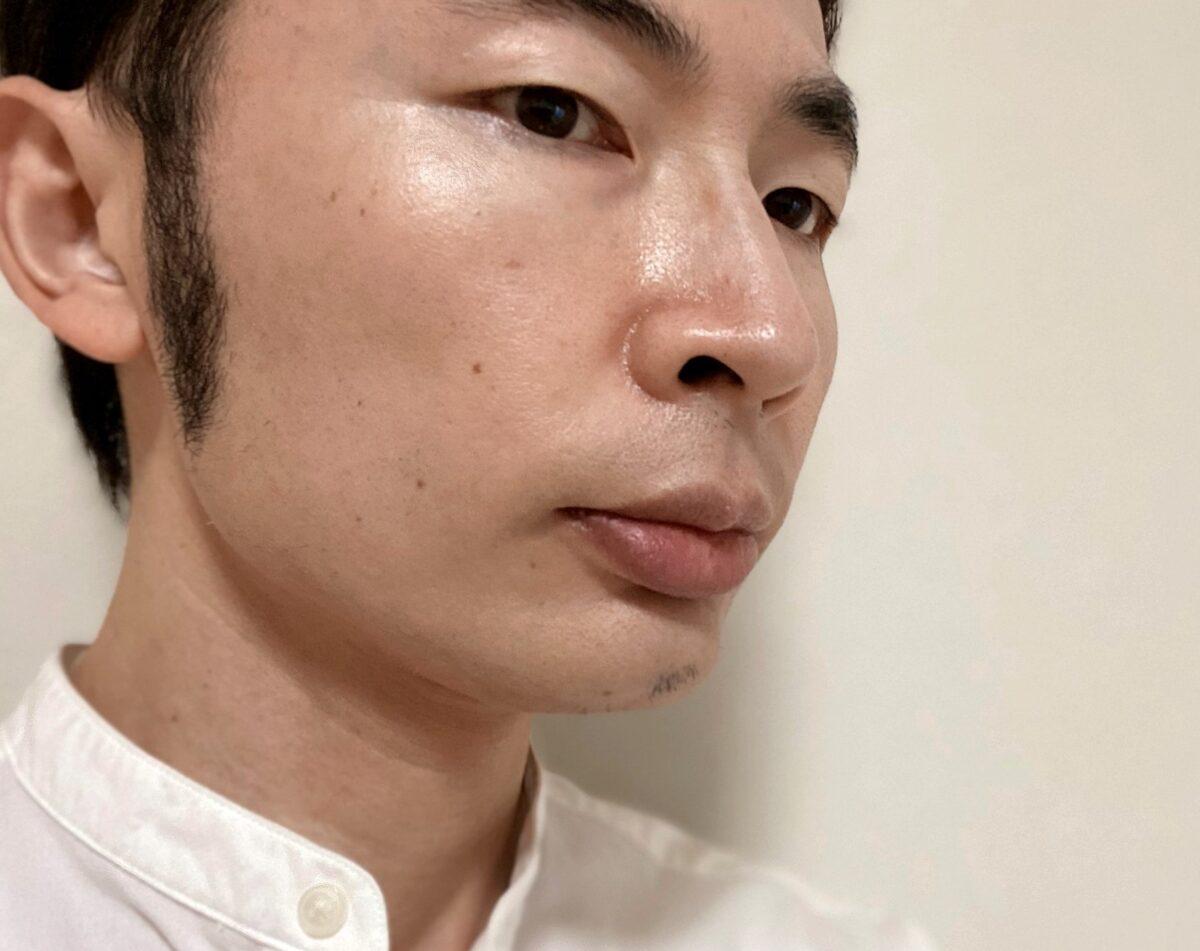頬ヒゲ脱毛8回目の効果