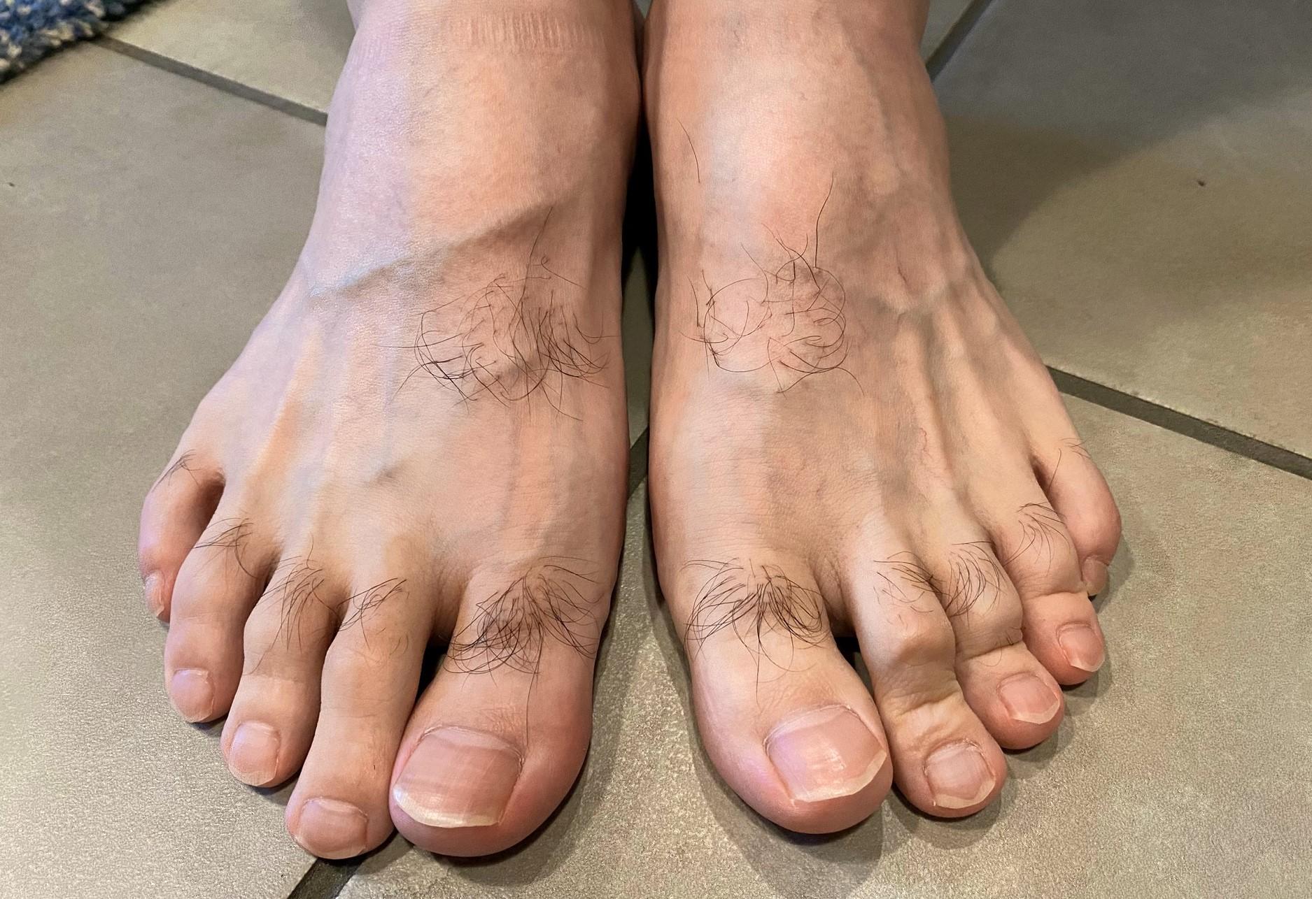 男の全身脱毛前の足の指