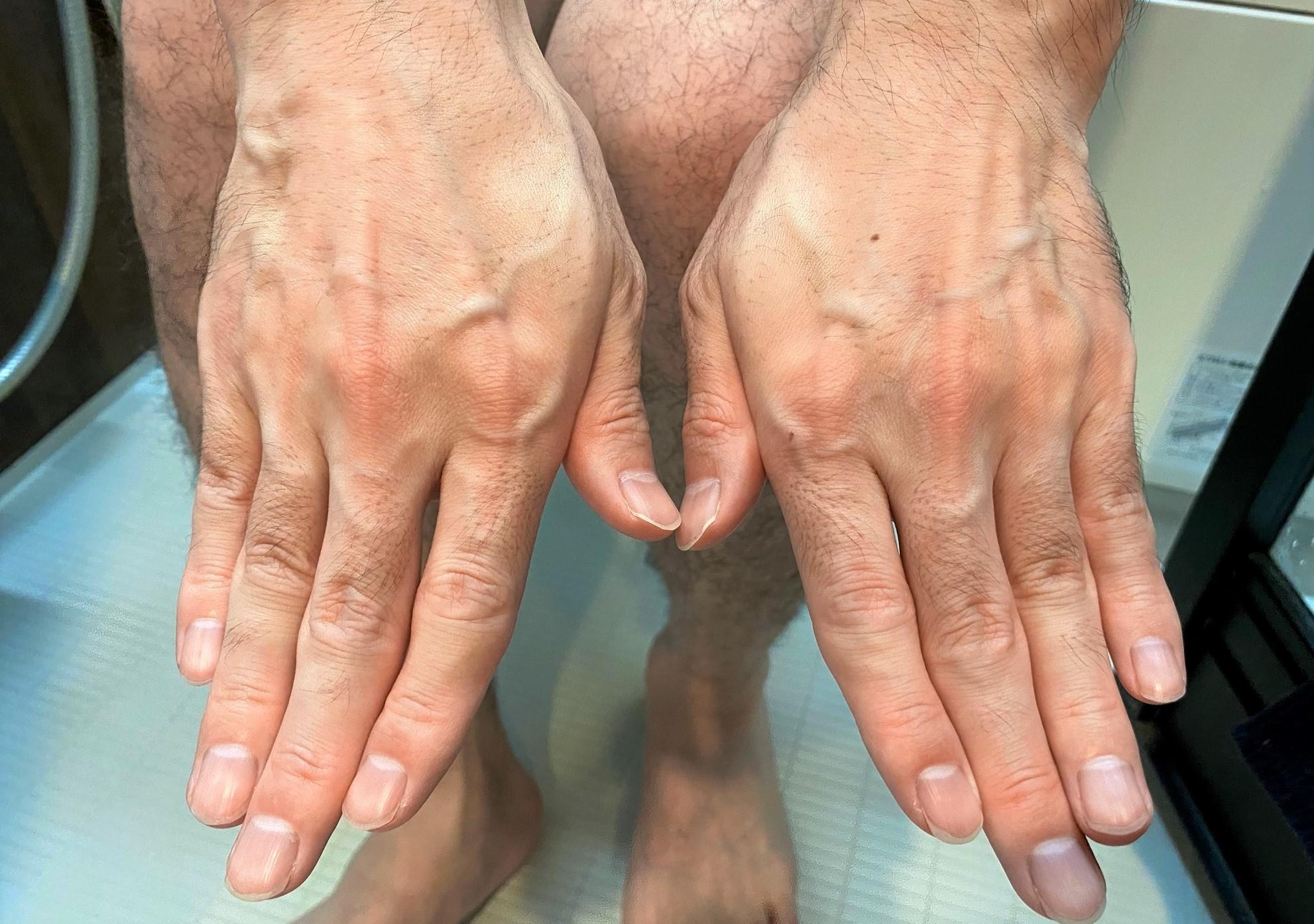 男の全身脱毛前の手の指
