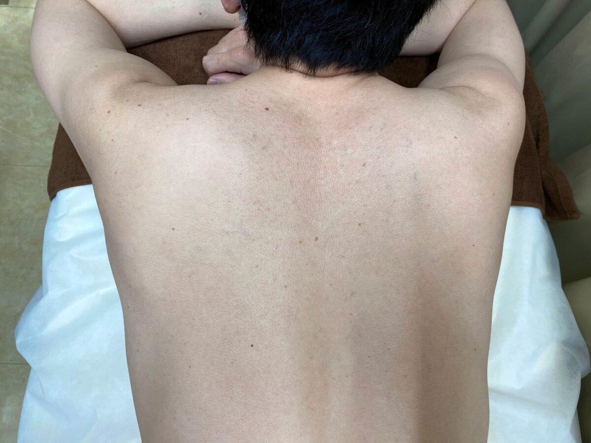 男の背中脱毛の施術前