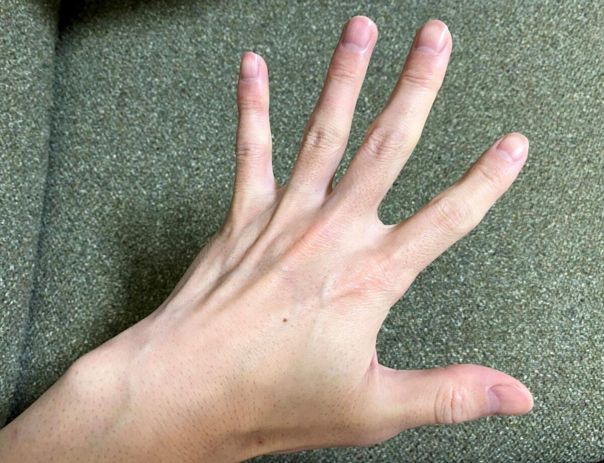 男の手の指脱毛1回目の効果