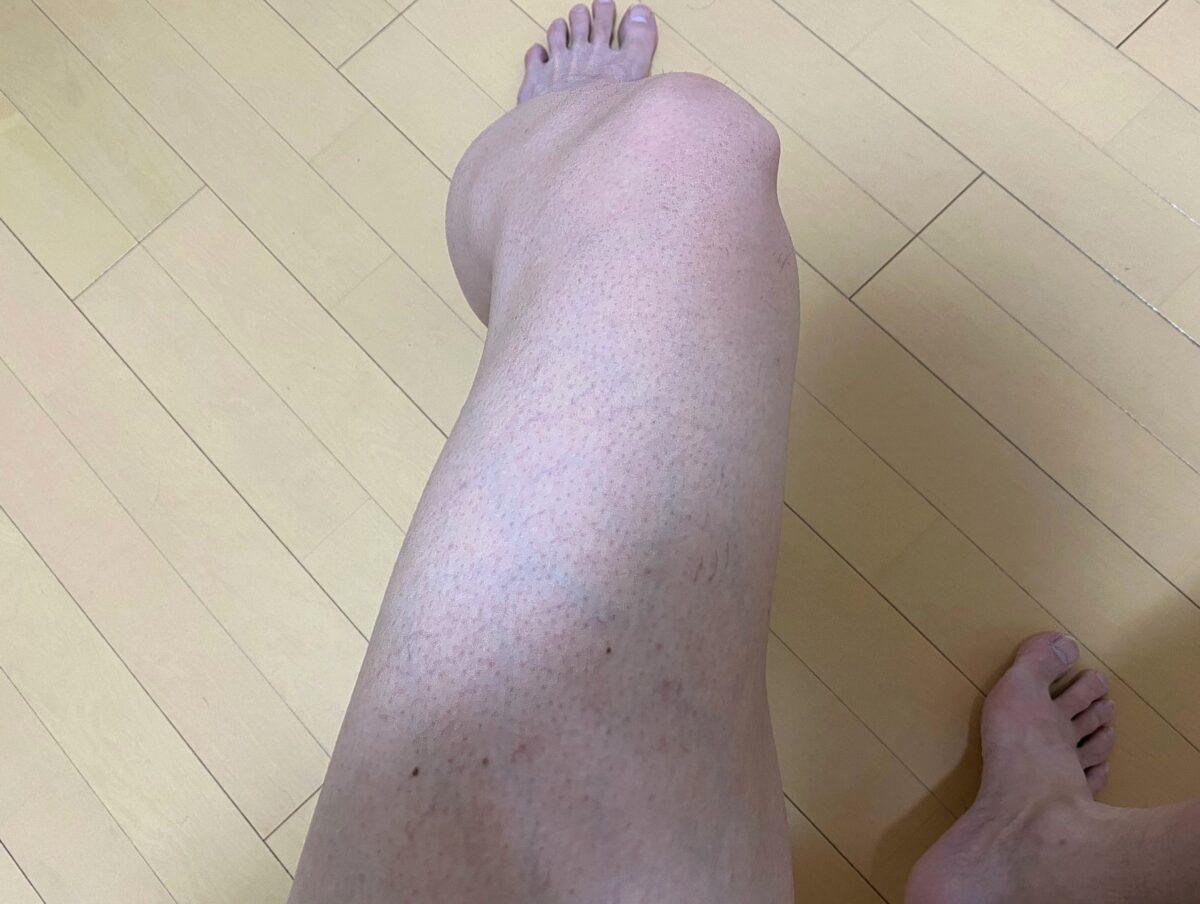 男の脚脱毛1カ月後