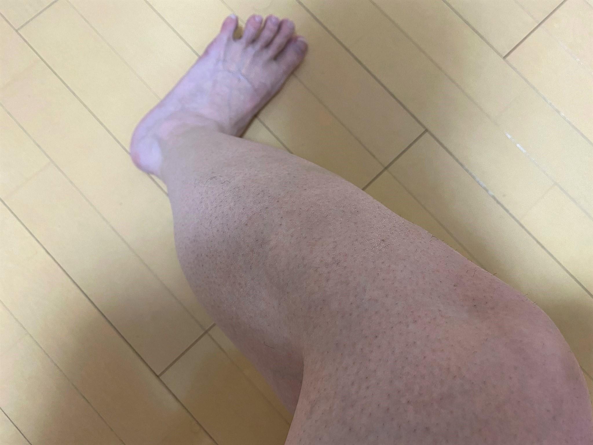 男の脚脱毛1回目の効果