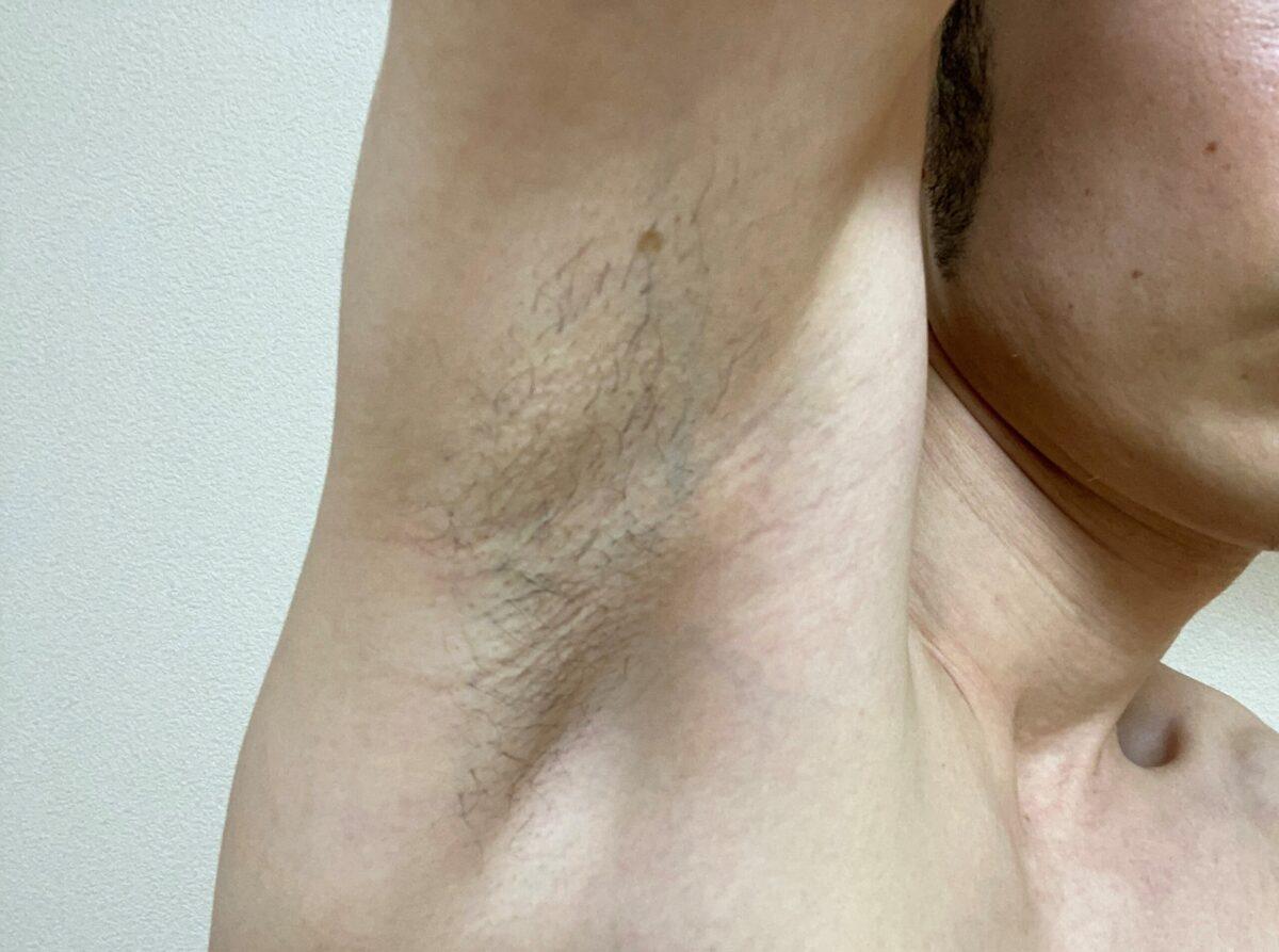 男の全身脱毛1回目2カ月後の脇