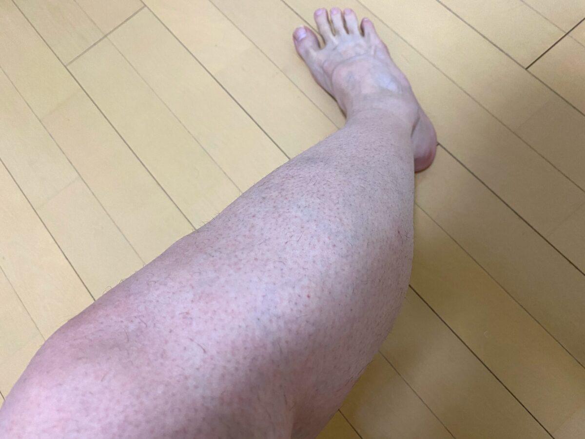 男の全身脱毛1回目2カ月後の脚