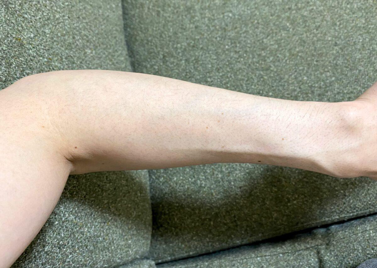 男の全身脱毛1回目2カ月後の腕