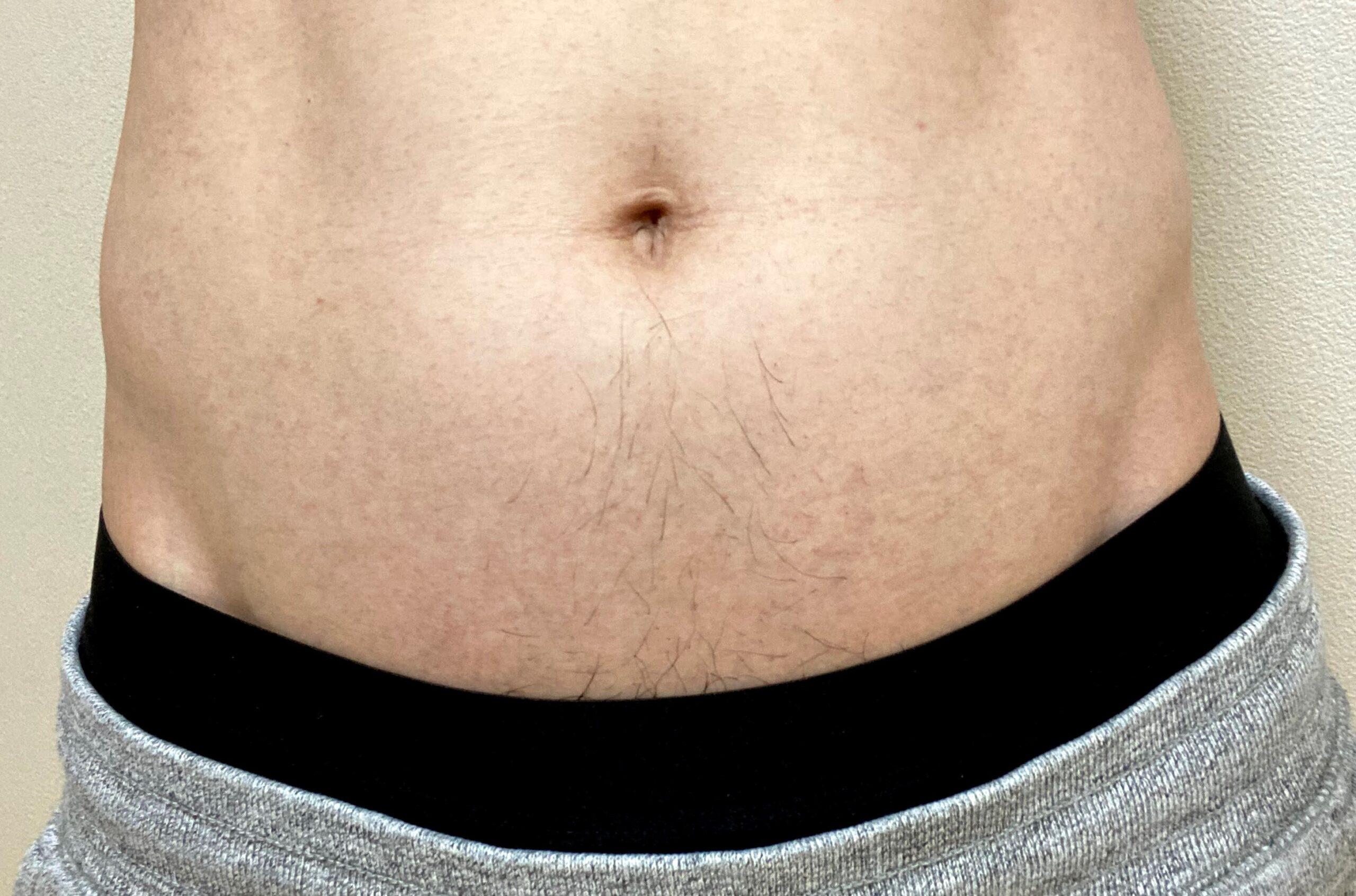 男の全身脱毛1回目2カ月後の腹