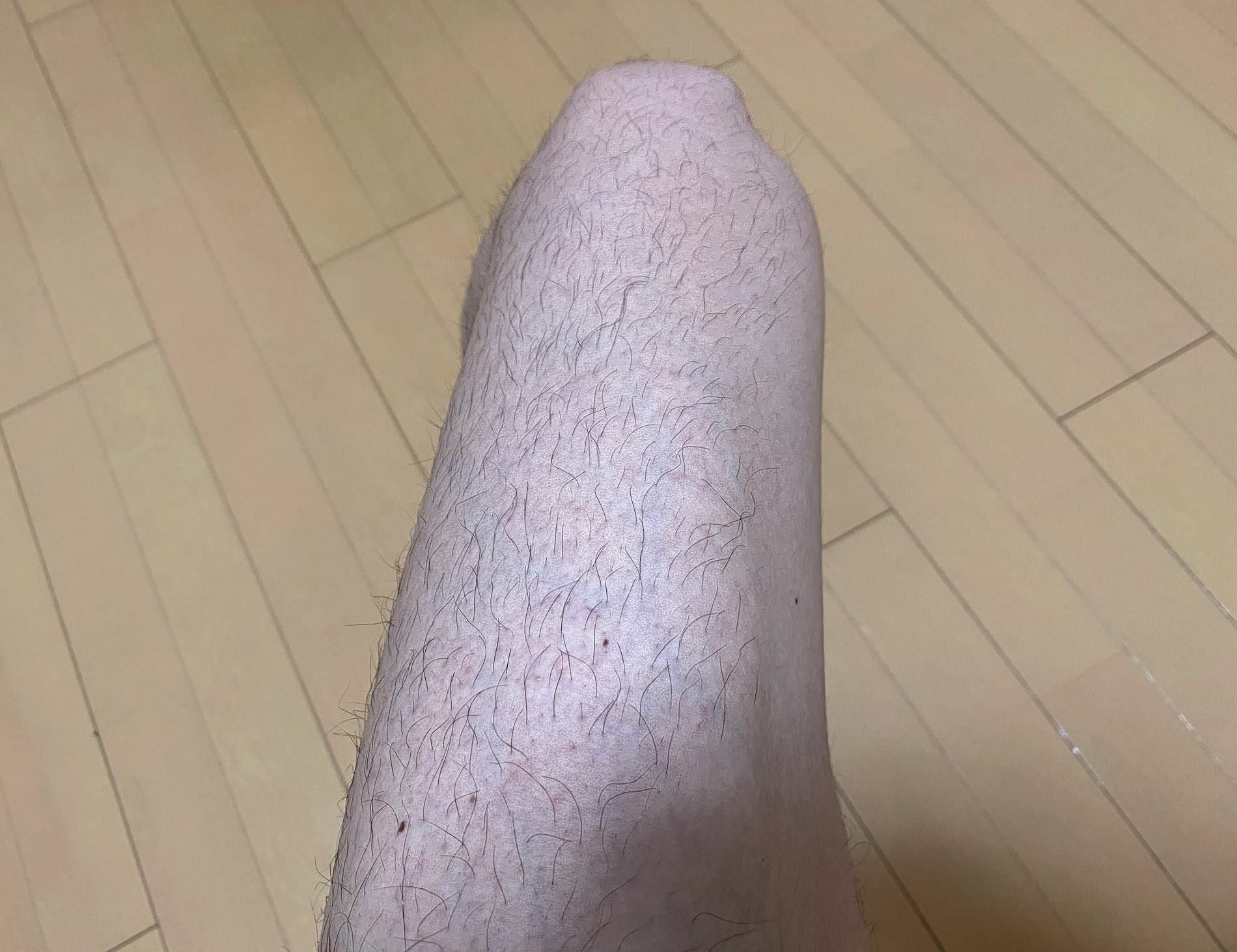 男の全身脱毛1回目の効果
