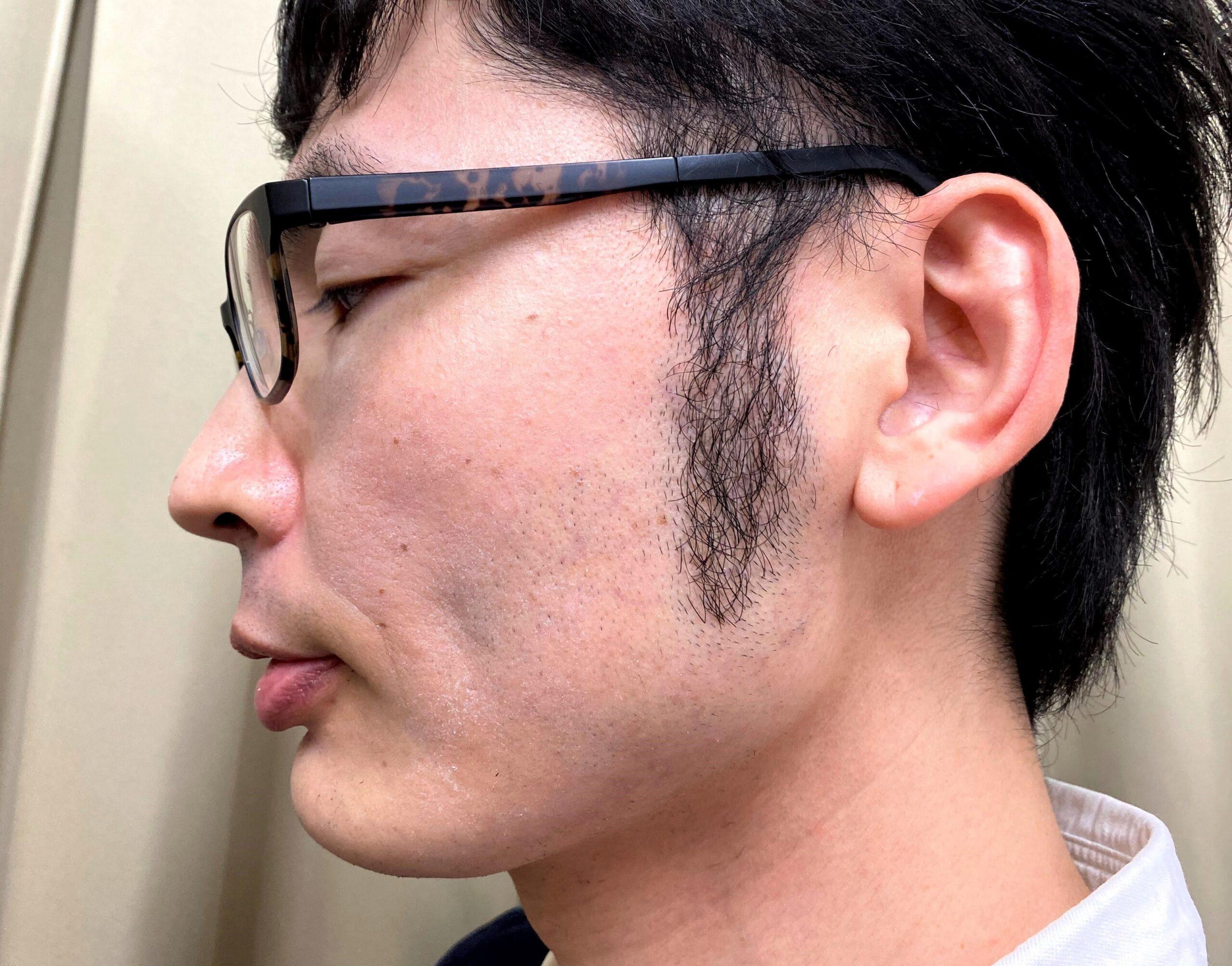 湘南美容クリニックで頬ヒゲ脱毛の施術を受ける前
