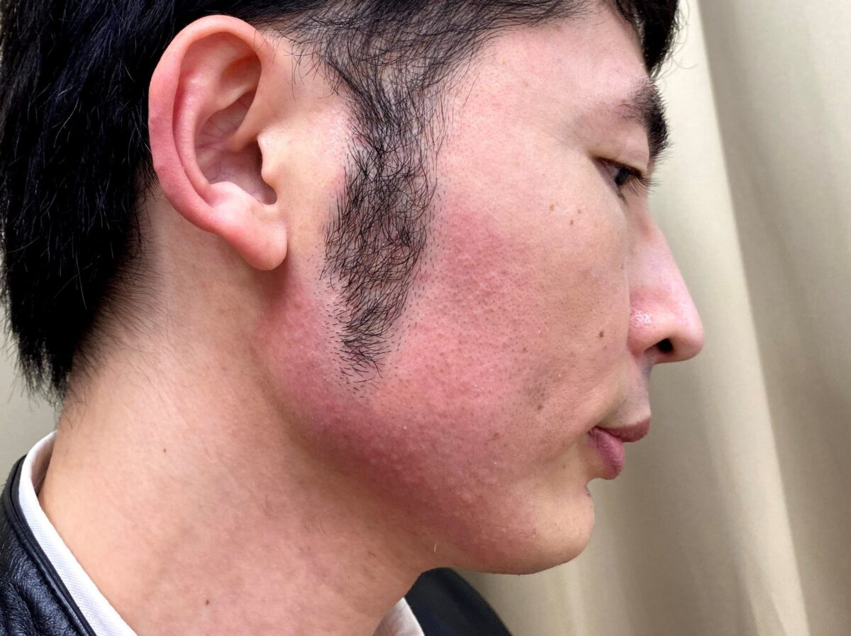 湘南美容クリニックで頬ヒゲ脱毛の施術を受けた後