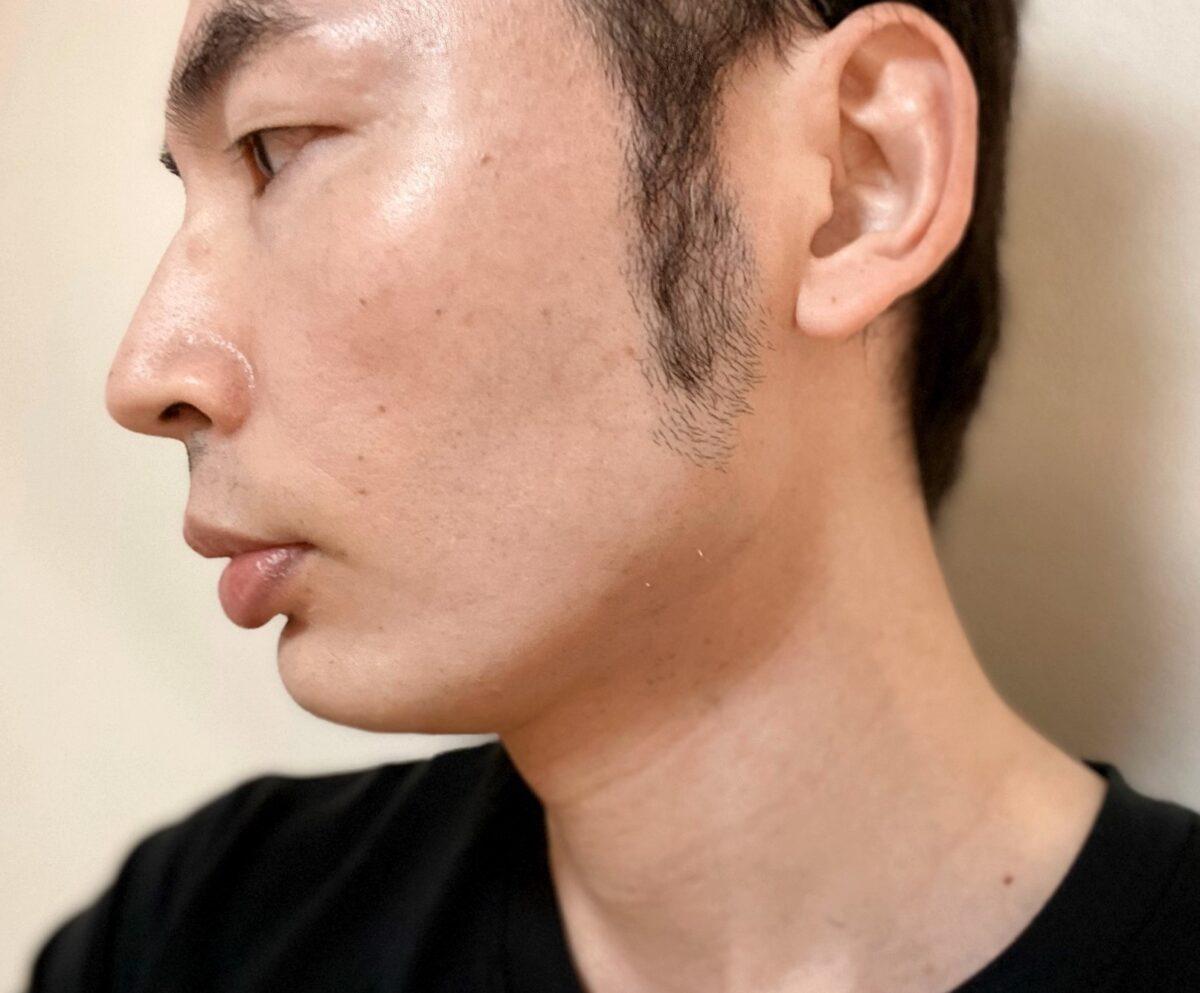 頬ヒゲ脱毛9回目の施術の効果