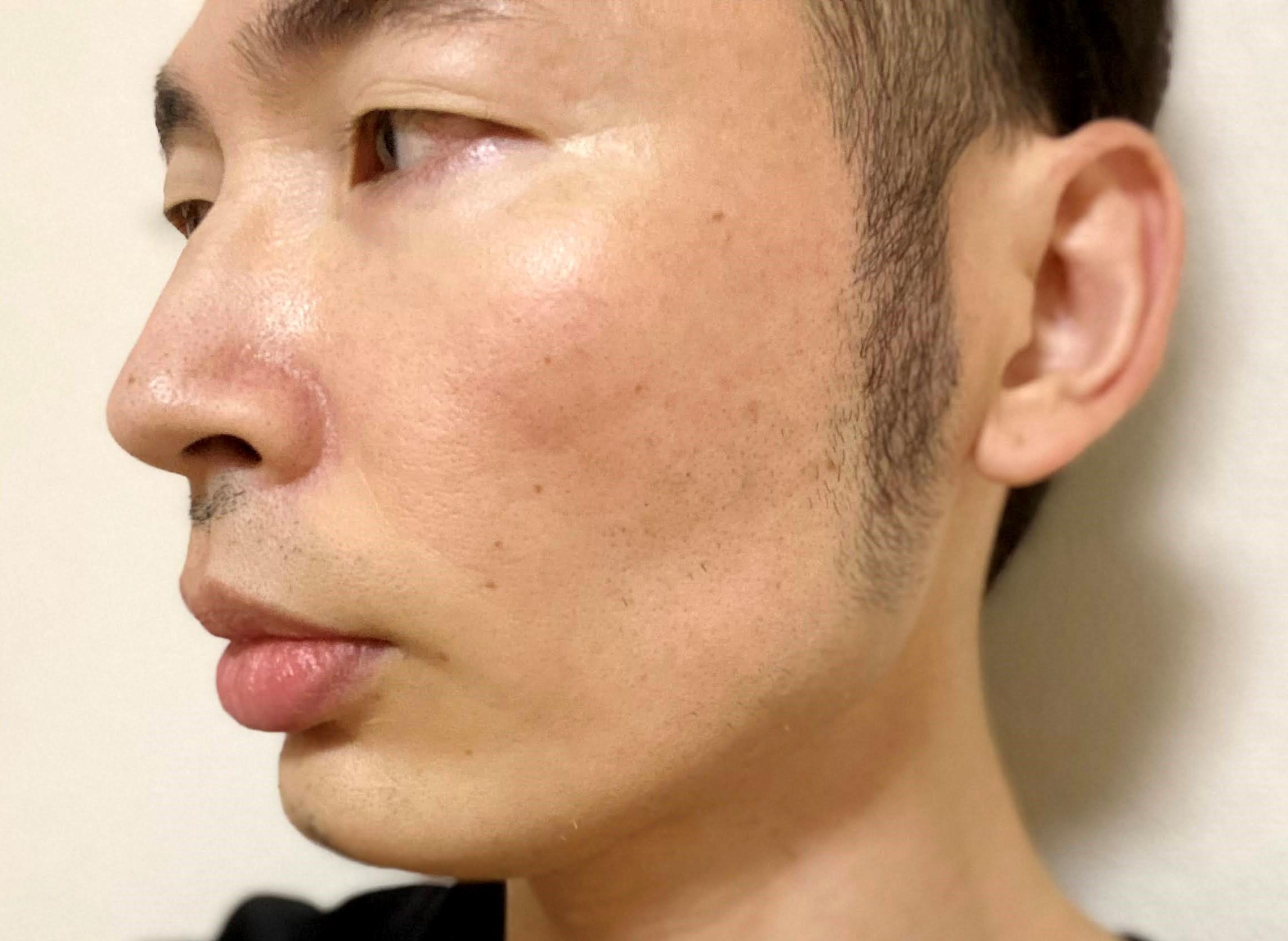 頬ヒゲ脱毛9回目の効果