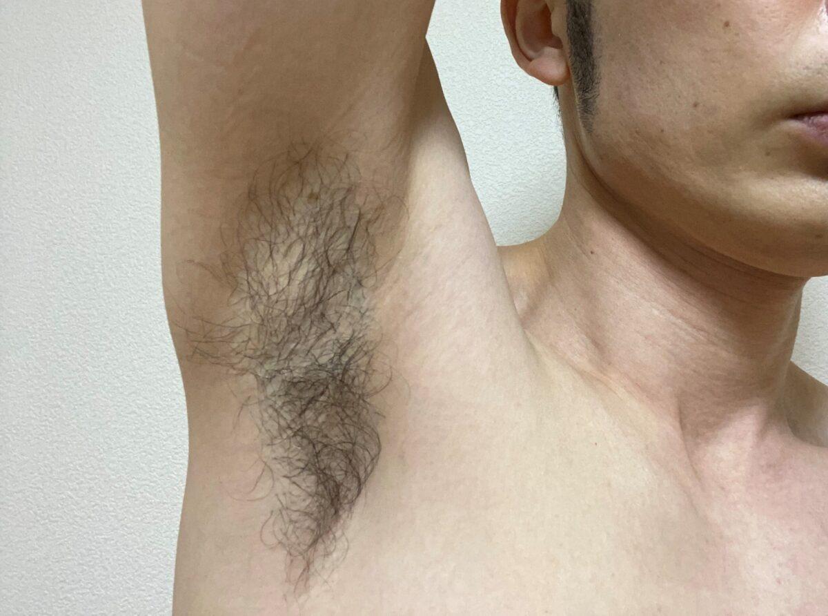 全身脱毛・わき脱毛4カ月後の効果