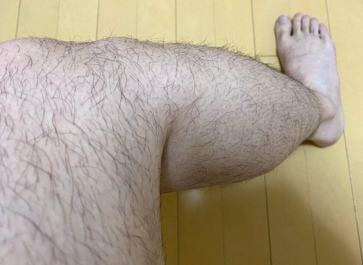 全身脱毛・脚脱毛4カ月後の効果
