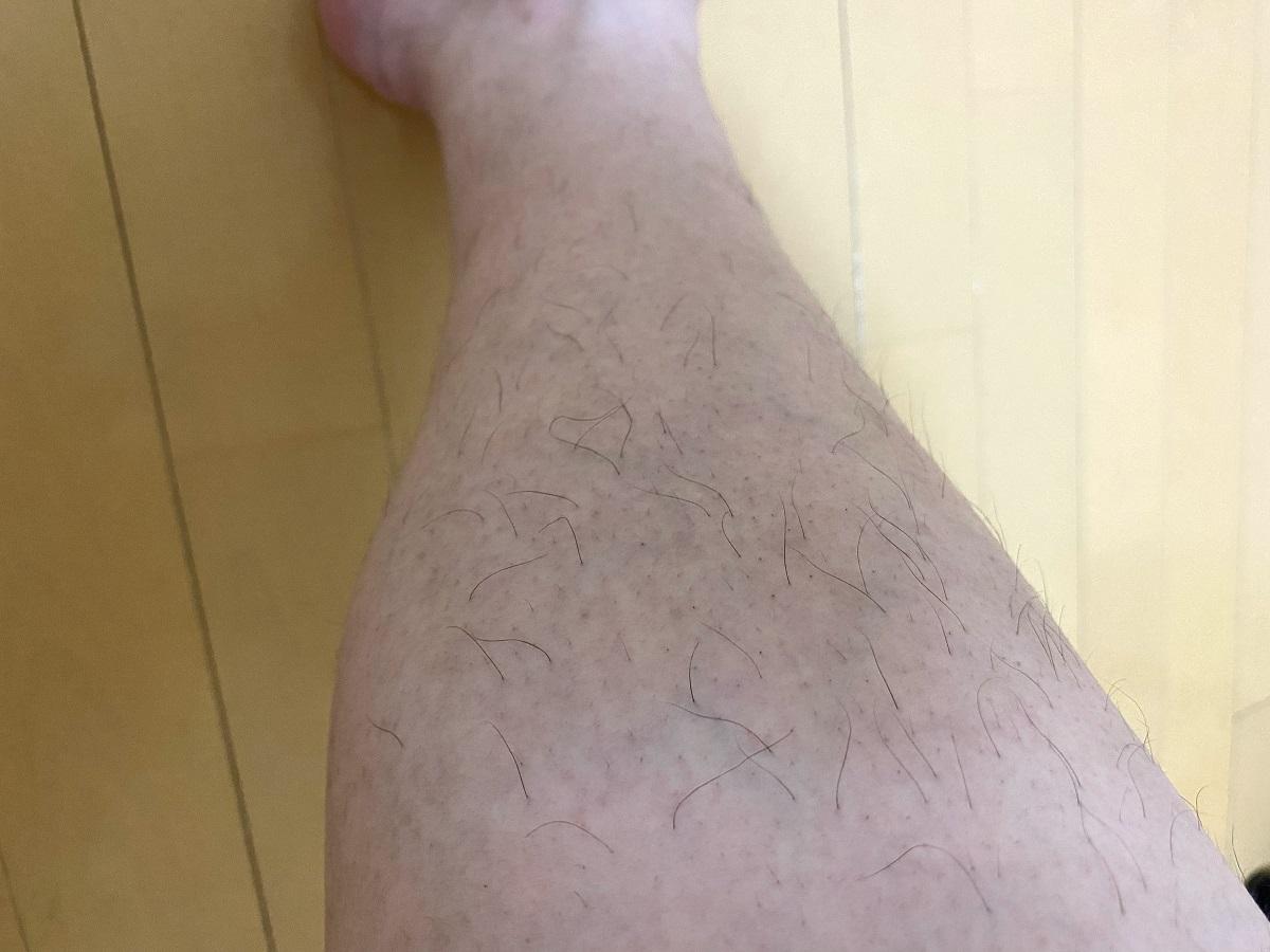 メンズ全身脱毛2回目2カ月後の効果