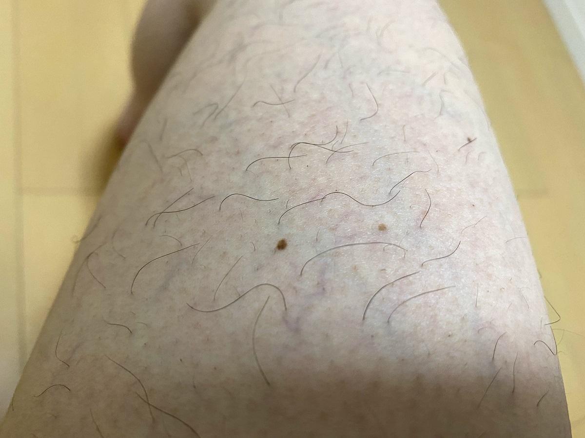 男の全身脱毛3カ月後の結果